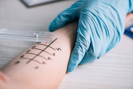 cropped view of doctor in latex gloves doing allergy test to woman in clinic Stock fotó