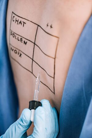selective focus of doctor holding pipette near woman with letters on marked back