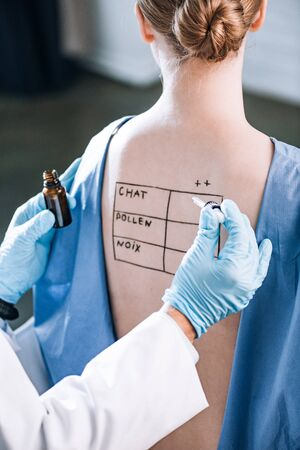 cropped view of allergist holding pipette near woman with letters on marked back Stock fotó
