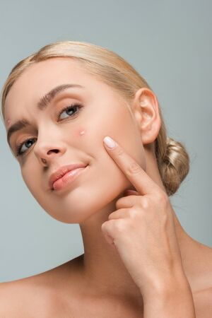 A displeased girl pointing with finger at face with acne isolated on grey Stockfoto