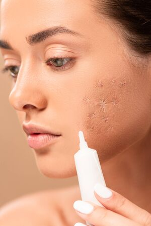 close up of girl holding treatment cream near face with problem skin isolated on beige