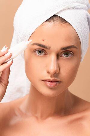 Frau im Handtuch, die Behandlungscreme in der Nähe des Gesichts mit Problemhaut hält, isoliert auf Beige