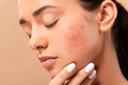Mujer joven con los ojos cerrados tocando la cara con acné aislado en beige