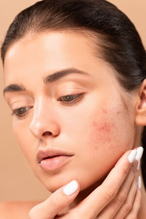 young woman touching face with problem skin isolated on beige