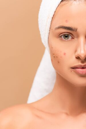 cropped view of girl in towel with acne on face isolated on beige