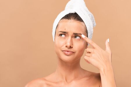 displeased woman pointing with finger at face with pimple isolated on beige
