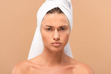 displeased nude girl in towel looking at camera isolated on beige