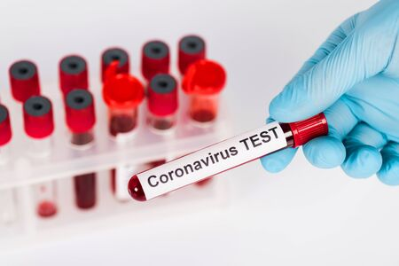 selective focus of scientist holding sample with coronavirus test lettering near test tubes isolated on white