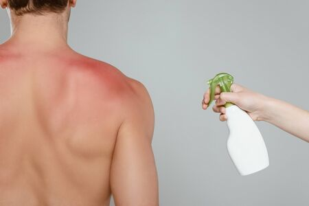 Cropped view of woman applying spray on male back with redness isolated on grey