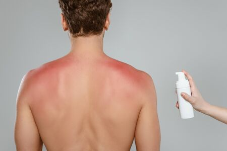 Cropped view of woman holding bottle of foam near man with sunburn isolated on grey 版權商用圖片