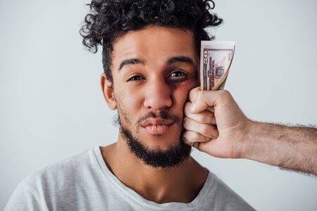 African american man with bruise looking at camera near male hand holding cash isolated on grey