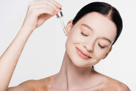 smiling young beautiful woman with vitiligo applying serum isolated on white
