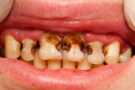 destructed: Neglected teeth - Extended cavities.
