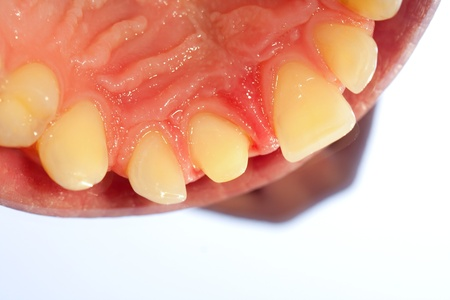 buffed: A close-up of a buffed tooth prepared for crown. Stock Photo
