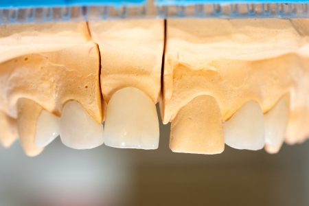 World leading e-max ceramic crowns and onlays on gypsum casting. Stock Photo
