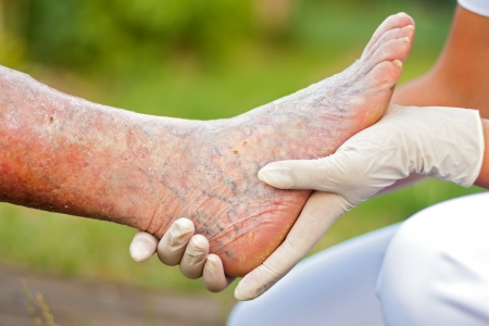 varicose veins: Doctor  Nurse holding an elderly  womans sick leg. Stock Photo