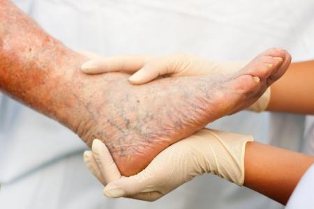 veine humaine: M�decin  Infirmi�re tenant la jambe malade d'une femme �g�e - se concentrer sur les ongles.