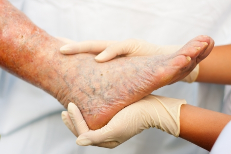 Doctor / Nurse holding an elderly  woman's sick leg - focus on nails.