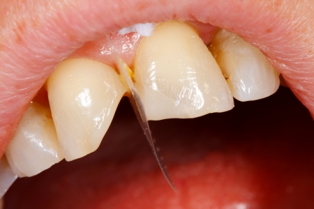 composite: A broken tooth s treatment with composite filling material - first steps.  Stock Photo