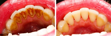 plaque: Two photos made by dentist, one before and one after the treatment of dental tartar - the subsidence is the result of residual food, smoking and coffe drinking - part of Beforeafter series.