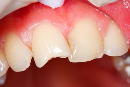 needing: Fratured human teeth needing medical attention Stock Photo