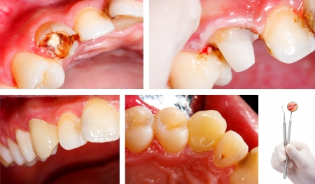 dental resin: A series of photographs showing the result of the dental treatment - a fractured and destroyed tooth restored to its initial aspect and function - part of Beforeafter series.