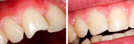 dental resin: The treatment of a fractured tooth (incisor) - part of Beforeafter series. Stock Photo