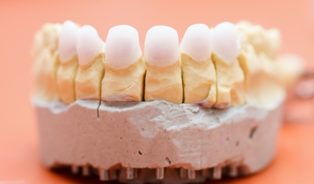 prosthetics: Dental zircon  pressed ceramic, base for an aestetic crown made of porcelain.