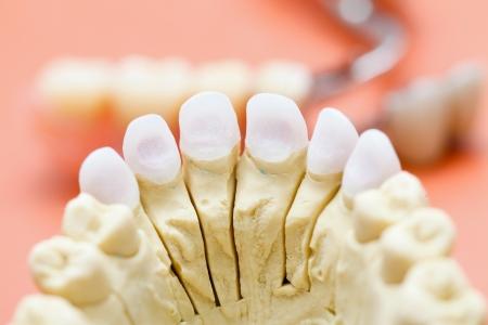 cerámicas: Circón Dental  presionado base de cerámica, para una corona de porcelana Estética. Foto de archivo