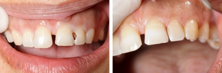 The treatment of a fractured teeth ( incisors ) - part of Beforeafter series. photo