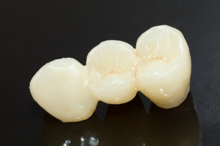 prosthetics: Highly aesthetic emax pressed ceramic bidge  crown.
