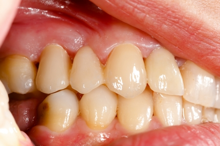 mouth cavity: Highly aesthetic emax pressed ceramic bidge  crown in oral cavity. Stock Photo