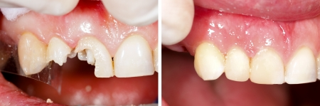 fractured: Destroyed teeth being restorated - part of beforeafter series.