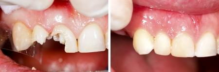 caries dental: Dientes destruidos siendo restauradas - parte de la serie beforeafter. Foto de archivo