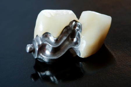 dental resin: Part of a scheletal prosthesis that replaces missing teeth through special clamping systems and it can be removed by the pacient - part of a series. Stock Photo
