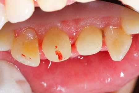 gingivitis: Dental treatment phase: the probation of the zirconia basis of de upcoming porcelain crown - series in my porfolio.
