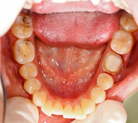 gingivitis: Human molar tooth treated before a crown. Stock Photo