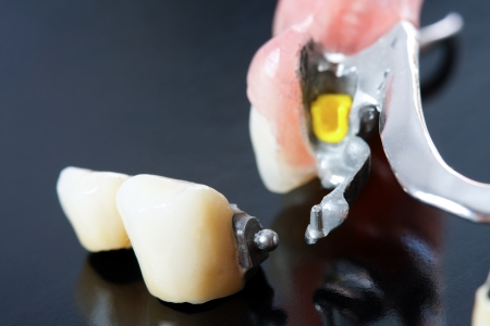 be missing: Part of a skeletal prosthesis that replaces missing teeth through special clamping systems and it can be removed by the patient - part of a series. Stock Photo