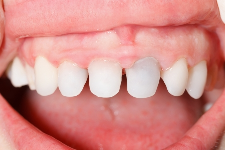 zircon: Dental zircon  pressed ceramic, base for an aestetic crown made of porcelain in human mouth.