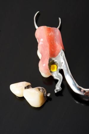 laboratorio dental: Parte de una pr?tesis scheletal que reemplaza los dientes que faltan a trav?s de especiales sistemas de fijaci?n y puede ser eliminado por el pacient - parte de una serie.