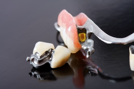 be missing: Part of a scheletal prosthesis that replaces missing teeth through special clamping systems and it can be removed by the pacient - part of a series. Stock Photo