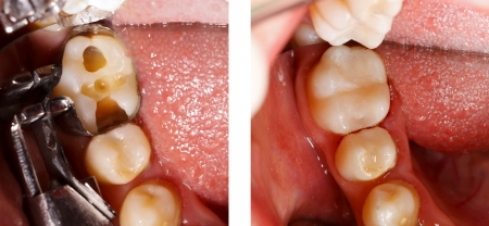 cavity: The aesthetic restoration of a lower molar tooth with composite resin.