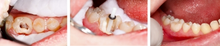 dental resin: The aesthetic restoration of a lower molar tooth with composite resin, strengthened with fiber glass post. Stock Photo