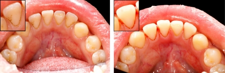 Cleaned teeth with air prophy unit - before and after. photo