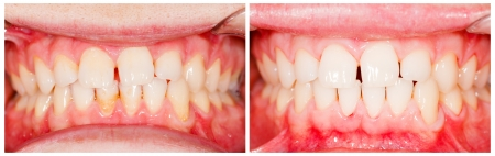 Teeth before and after tooth whitening treatment.