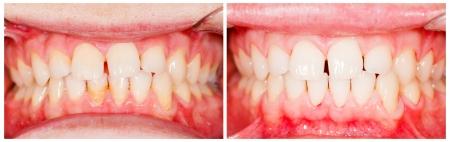 dentier: Dents avant et après traitement de blanchiment dentaire. Banque d'images