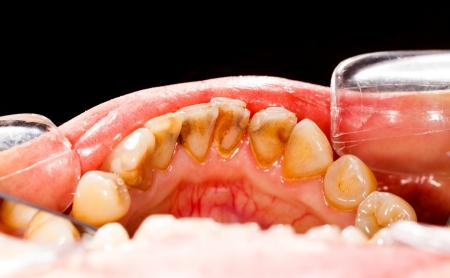 bad teeth: Human denture during dental treatment - tartar on teeth.