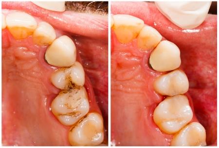 karies: Mänsklig protes före och efter tandbehandling. Stockfoto