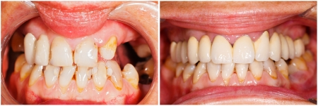 prosthetics: Picture of human teeth before and after dental treatment - beforeafter series.