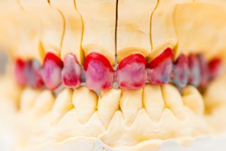 basis: Wax model of the metal basis ceremic dental bridge.
